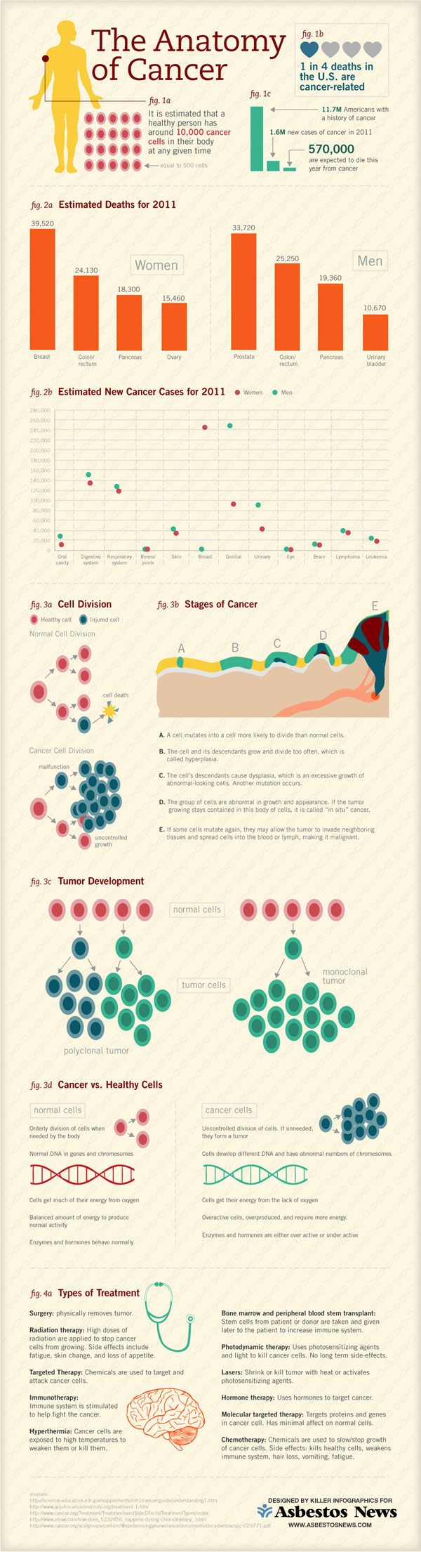 anatomy of cancer infographic 600 Infographic   The Anatomy of Cancer